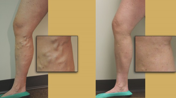 Post Op Info Sclerotherapy Treatment For Leg Veins Vhc Patient